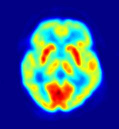 PET scanning af hjerne