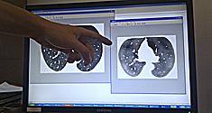 Lauge Sørensens 'sandsynlighedskort', hvor de mørke områder angiver høj sandsynlighed for ødelagt lungevæv.
