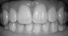 Undersøgelser viser ifølge Diabetesforeningen, at diabetikere har en større risiko for at få problemer med tandsundheden