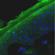 Læs mere om: Forskere udvikler vaccineplaster med nanopartikler